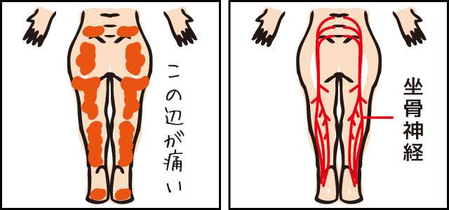 坐骨神経痛の特徴